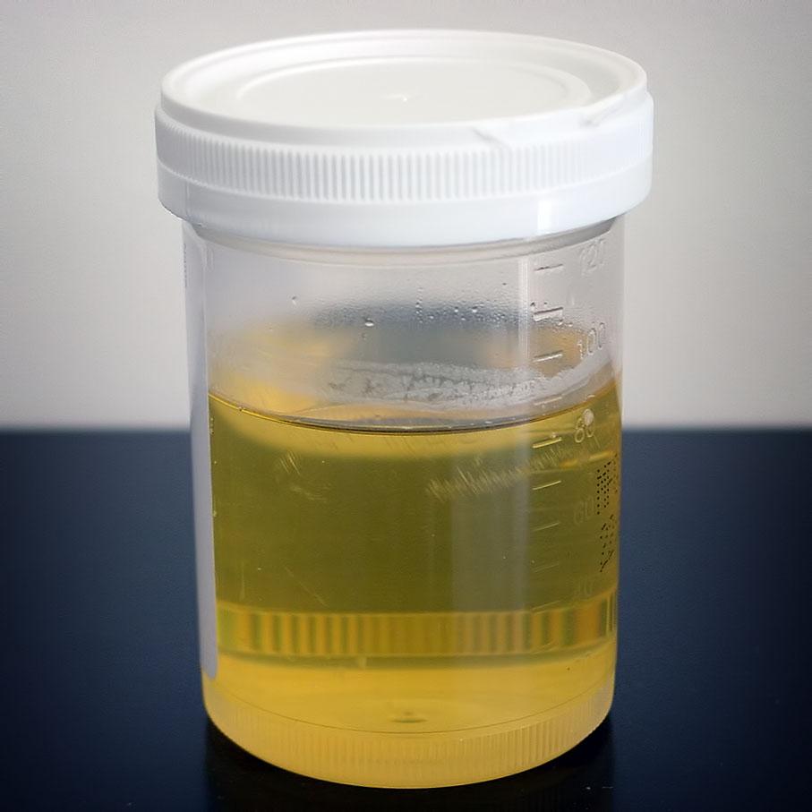 DIY Pregnancy Test - Urine in a Jar
